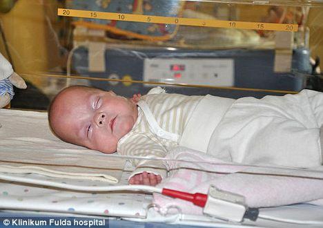 самый недоношенный ребенок в мире Фрида Мангольд фото